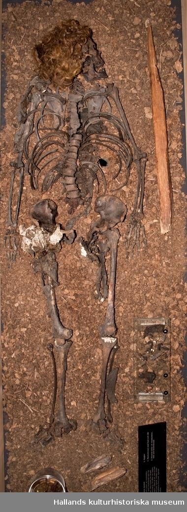 """Syrorna i mossen hade bevarat kroppen så att den inte helt förmultnat. Skelettet fanns kvar och var väl bevarat. Förutom skelettet var håret intakt. Det gick att identifiera hudbitar och muskelstycken och i kroppens inre fanns till exempel hjärnan kvar. Ämnen i torvmossen hade gett håret en kopparröd färg och skelettet en brunaktig patina. Håret var 10–12 cm långt, en modelängd för män vid mitten av 1300-talet.  Bockstensmannens skelett har genom åren undersökts av flera experter, bland andra tandläkare Gunnar Johansson, osteolog Nils-Gustaf Gejvall, kirurg Claes Lauritzen och osteolog Torbjörn Ahlström. De har tillsammans funnit att Bockstensmannen var 171 cm lång, vilket kan mätas utifrån lårbenet. Han var högerhänt, för muskelfästena är större på höger sida. Det finns även tecken på lårbenet som tyder på att han ridit en del. Bockstensmannen var gracilt byggd och man kan se på de små muskelfästena att han inte var van vid hårt kroppsarbete. Dessutom hade han början till en sjukdom, """"DISH"""", som bara har hittats bland skelett från de högre klasserna.  Kroppen var pålad enligt en utbredd folktro om att en ekpåle genom hjärtat skulle hindra den döde från att """"gå igen"""", dvs bli en gengångare. Kraniet är deformerat, sammanpressat från båda sidorna, och detta har tolkats på olika sätt. Kirurgen Claes Lauritzen menar att skadorna på kraniets högra sida är ett resultat av våld riktat mot huvudet. Osteolog Torbjörn Ahlström hävdar att deformationen beror på att skallen var mjuk som läder och hade pressats ihop av mossens tyngd samt skadats av harven som drogs över skelettet vid fyndtillfället. Mossens mångåriga påverkan på skelettet hade gjort skallen mjuk och formbar."""