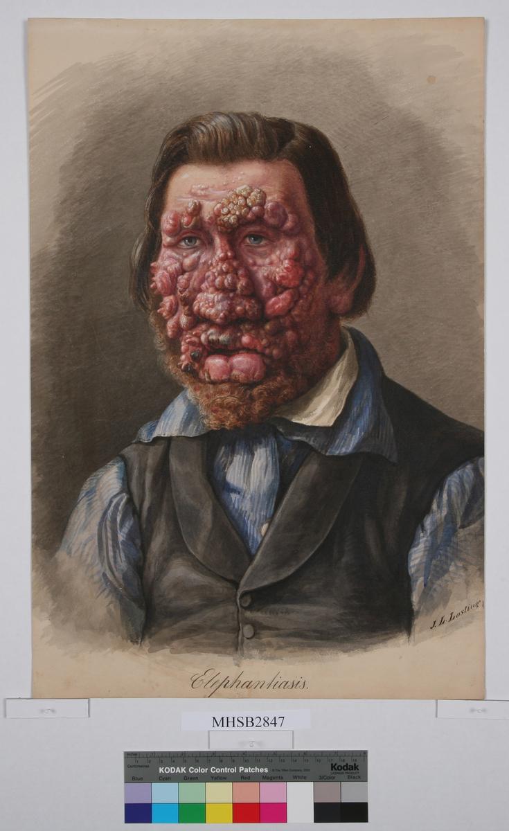 Mann med lepra