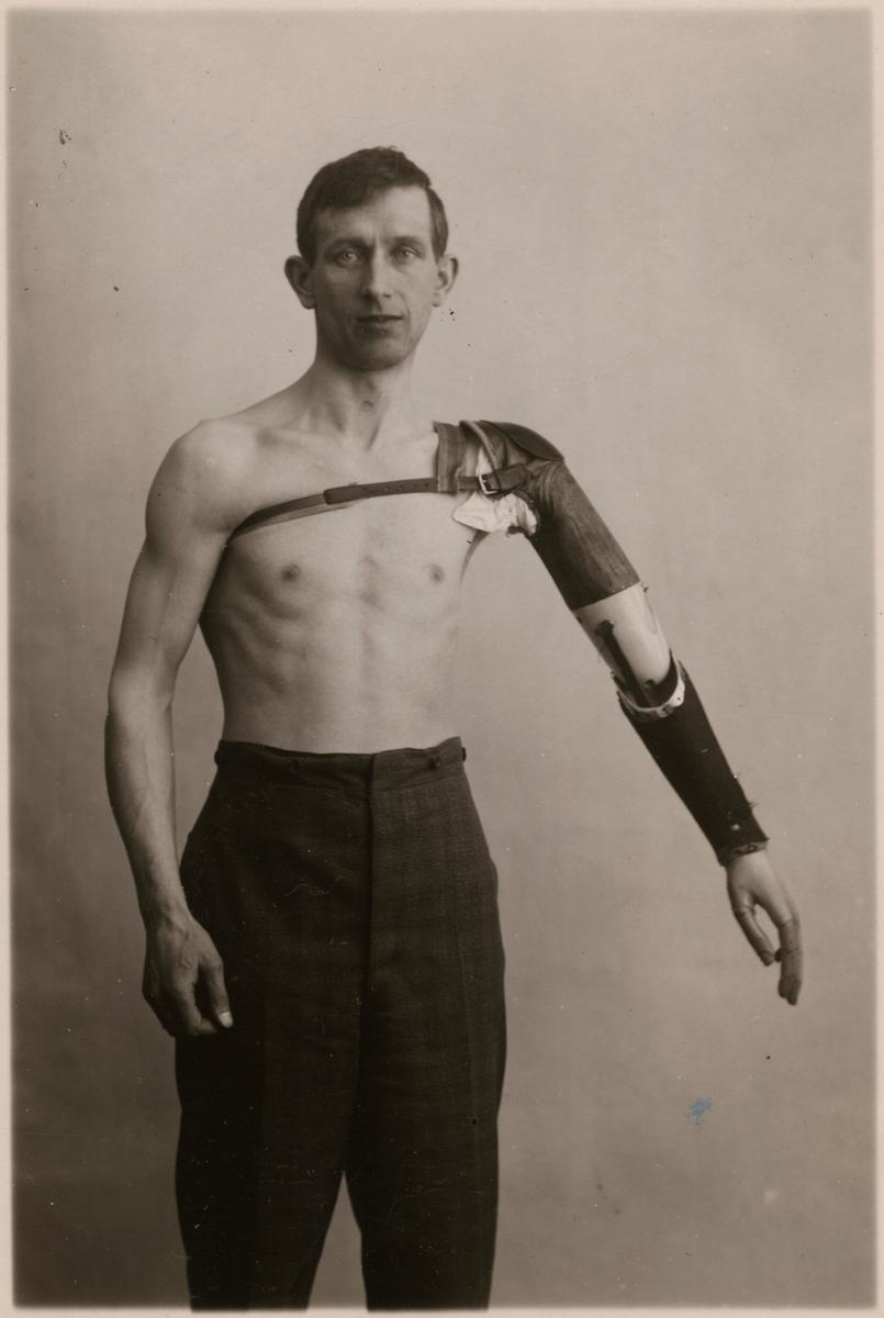 """Fotografi från """"Redogörelse för tillverkning vid Statens Järnvägars protesverkstad i Nässjö"""", 1932. Man med armprotes."""